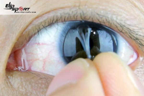 cách đeo lens