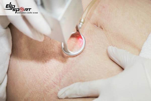 Cách trị rạn da khi tăng cân