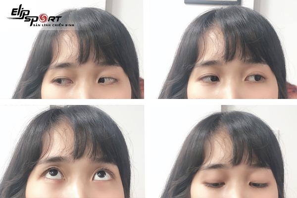 bài tập cho mắt