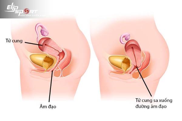 bài tập kegel cho phụ nữ sa tử cung