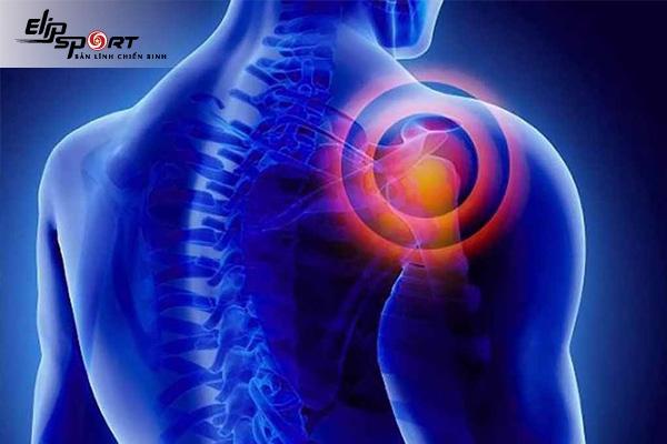 Rotator cuff là gì? Khắc phục hội chứng rotator cuff như thế nào?