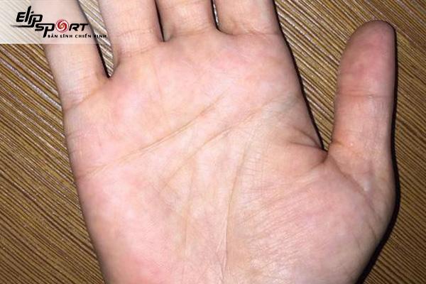 Cùng tìm hiểu có các kiểu bàn tay nào