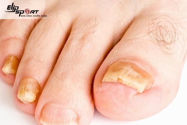 móng chân bị tách lớp