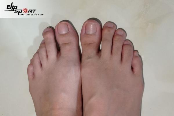 ngón chân trỏ dài hơn ngón cái
