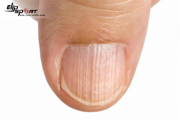 dấu hiệu trên móng tay