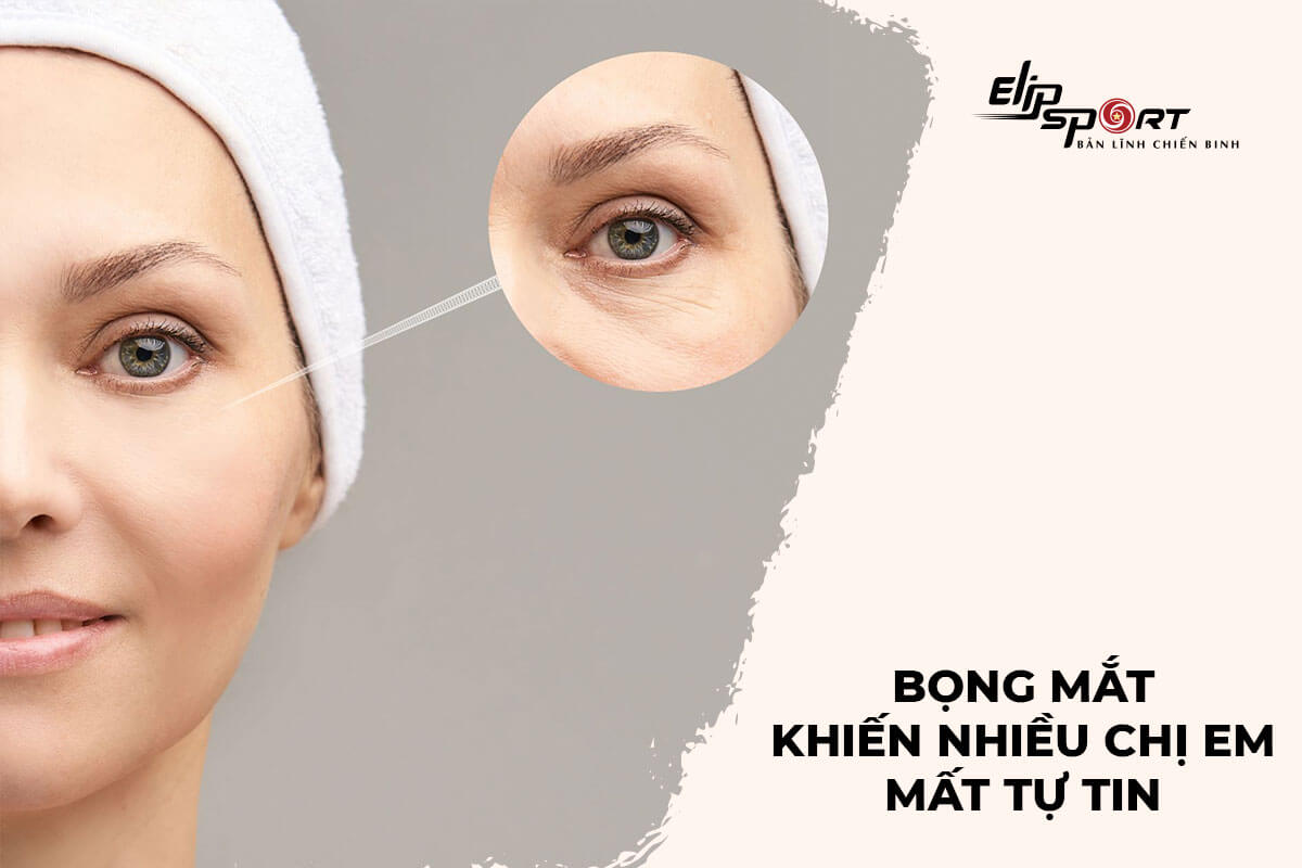 cách làm giảm mỡ bọng mắt