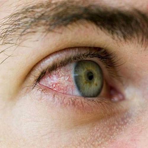 Đeo lens bị đỏ mắt phải làm sao? Nguyên nhân do đâu?