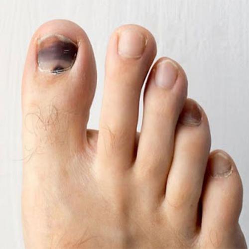 Cách trị móng chân bị đen giúp lấy lại chân xinh hoàn hảo