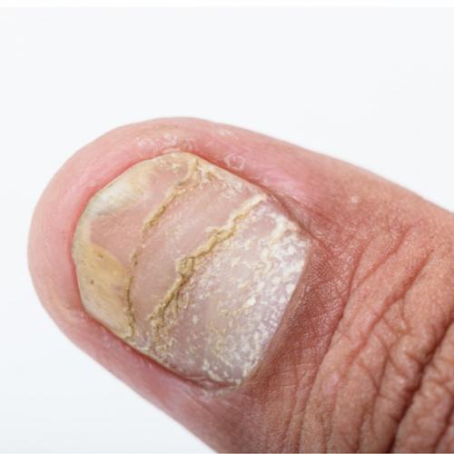 Móng chân bị tách lớp là bệnh gì và cách khắc phục