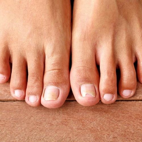 Vì sao móng chân bị dày lên, sần sùi và gợn sóng?