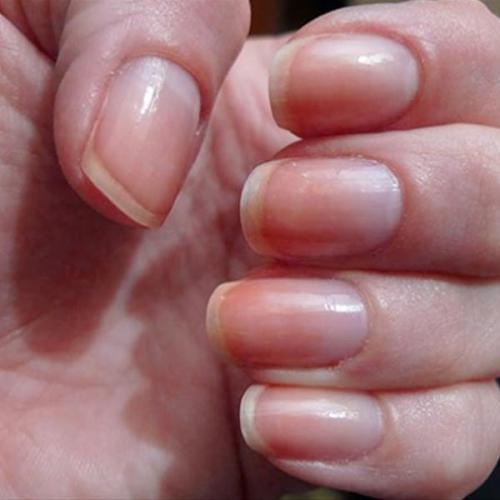 Những dấu hiệu trên móng tay cho thấy bạn có bệnh