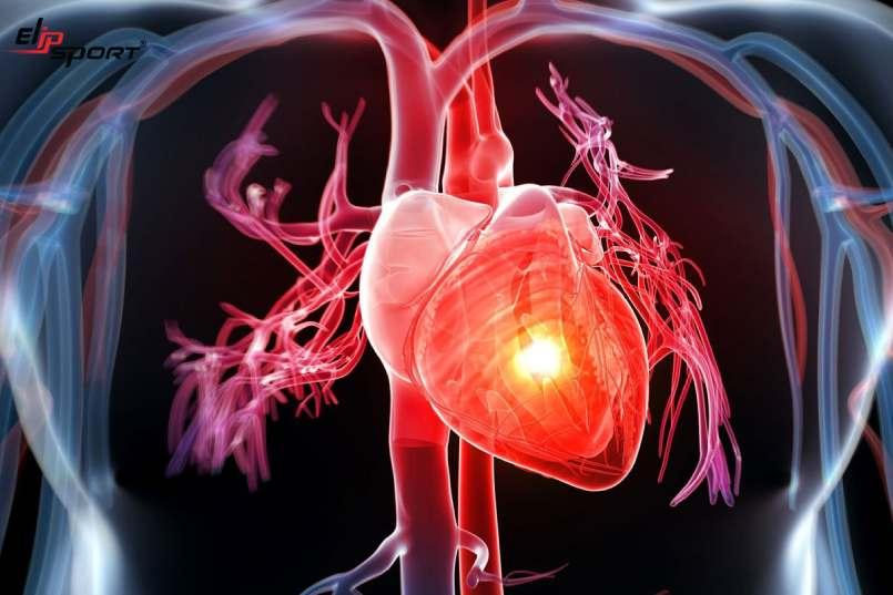 Nguyên nhân nhồi máu cơ tim