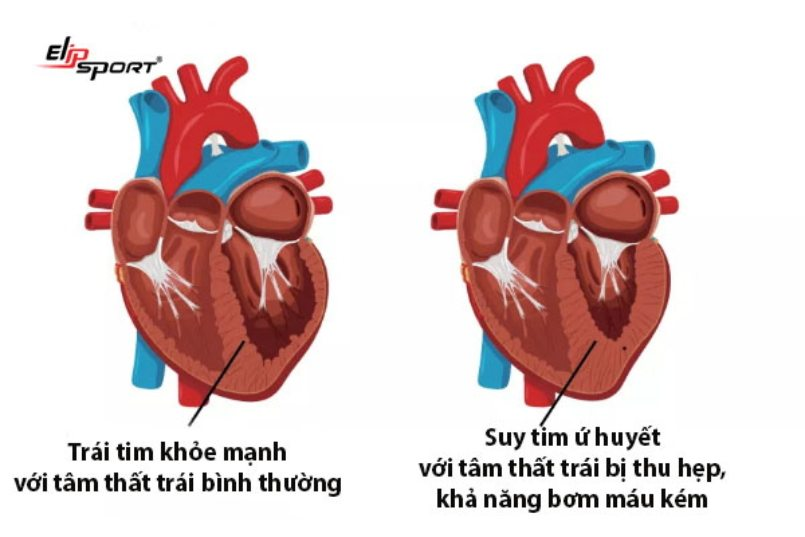 suy tim sung huyết
